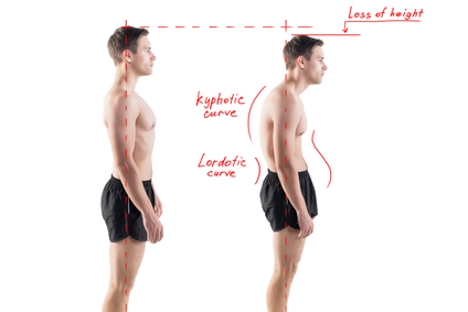 Person not with Good Posture Alignment